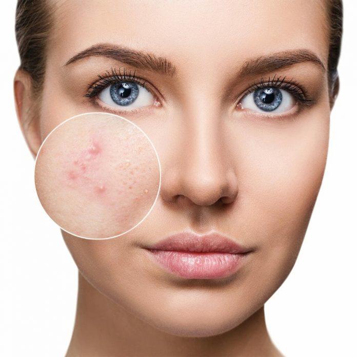 meilleur nettoyant visage peaux acnéique comparatif avis test guide d'achat