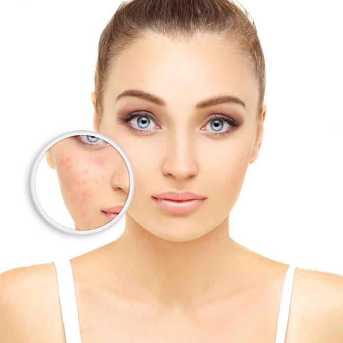 meilleur nettoyant visage pour la rosacée comparatif avis test guide d'achat